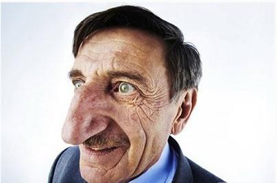 令人膛目結舌的世界32例人體之最 最奇葩的人體之最