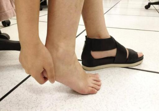 别忽视:脚上若有6个变化,或许是血管有点堵了