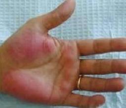 朱砂掌与肝掌的区别是什么?血热掌和肝掌对比图片
