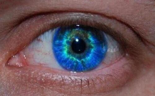 人类真的有双瞳吗?盘点人类最罕见的5种瞳孔
