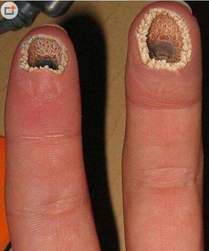空手指莲蓬乳合集:史上最全的空手指图片(图)