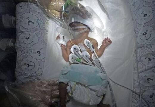 世界最小早产儿阿米利娅泰勒仅280克,现已10岁健康可爱