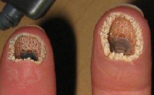 空手指是什么病?超恶心的手指图片
