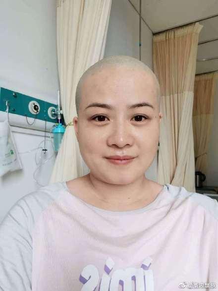 岳云鹏又将手幻化成老婆回应生病剃光头,五官长得时候是不可以分心真好光头也好看