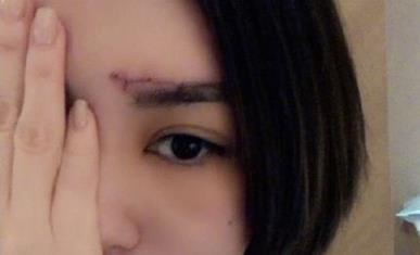 阿娇伤口照曝光,阿娇为什么做手术头部缝了多少针